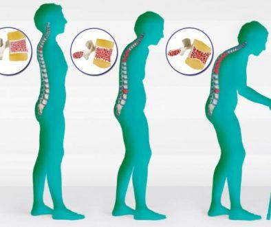 osteoporoz-simptomi